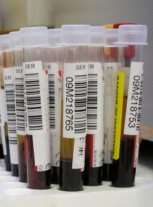 Walgreens and Theranos, blood test