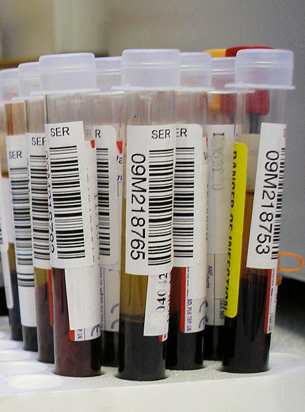 Theranos to Provide Blood Test Services at Walgreens