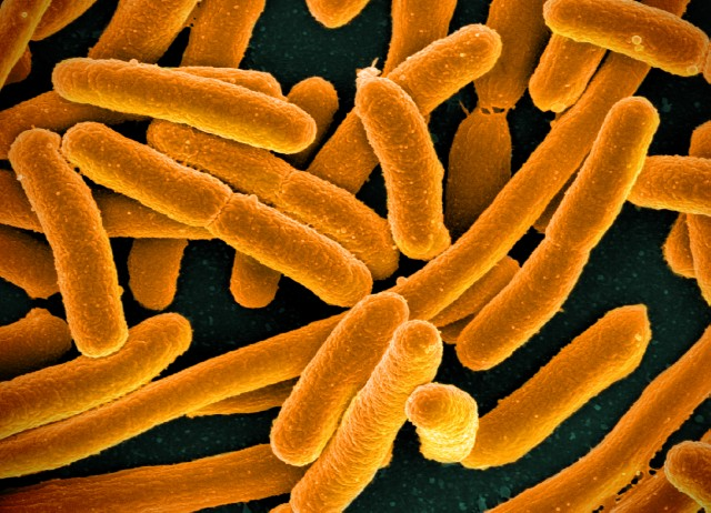 A colorized scanning electron micrograph of E. Coli bacteria.