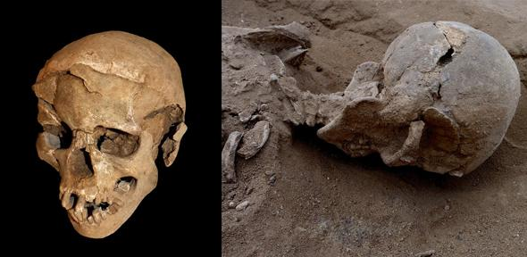 Left: Skull of a man found lying prone in the lagoon's sediments. The skull has multiple lesions consistent with wounds from a blunt implement. Right: The skull in situ.