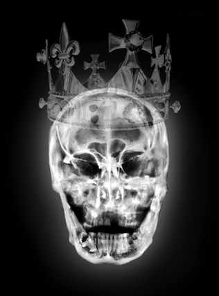 Artist X-ray Portraits of Richard III's Skull Bring the Plantagenet King to Life